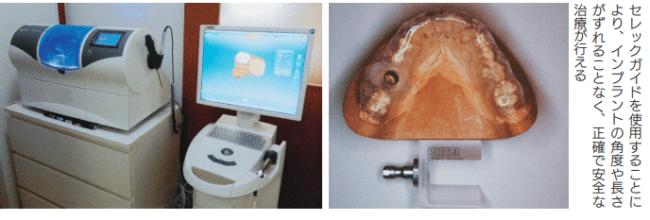 セレック(CAD/CAM)によるインプラント治療の例
